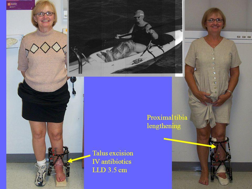 Talus excision IV antibiotics LLD 3.5 cm Proximal tibia lengthening