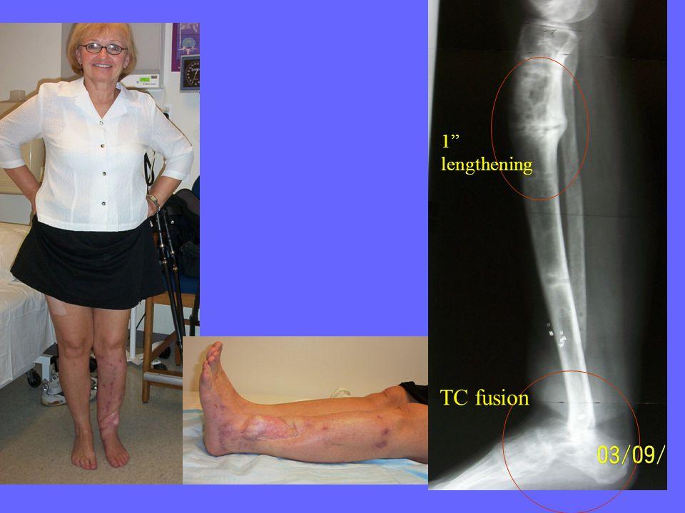 TC fusion 1 lengthening