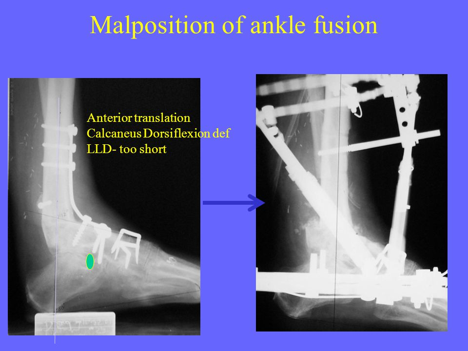 Malposition of ankle fusion Anterior translation Calcaneus Dorsiflexion def LLD- too short