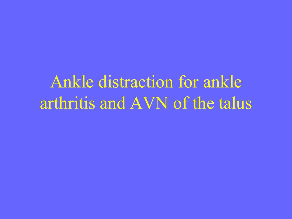 Ankle distraction for ankle arthritis and AVN of the talus