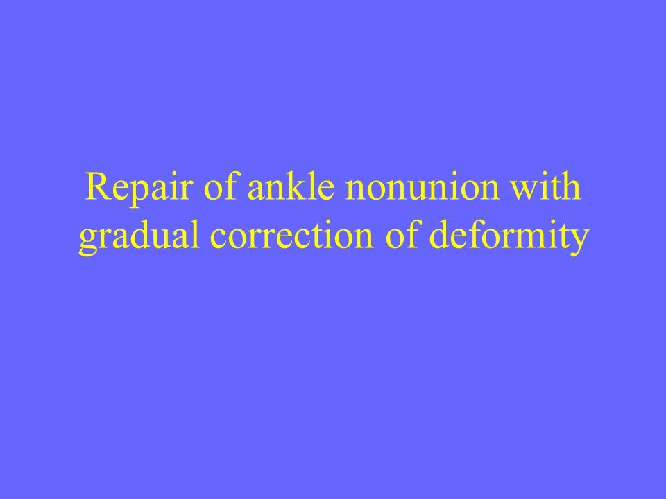 Repair of ankle nonunion with gradual correction of deformity