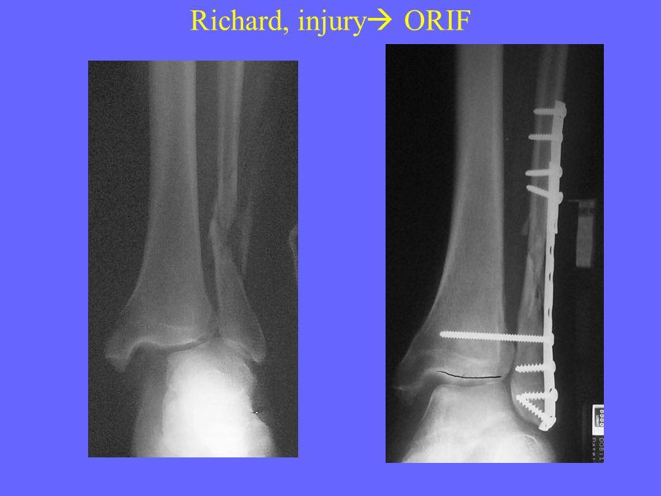 Richard, injury  ORIF