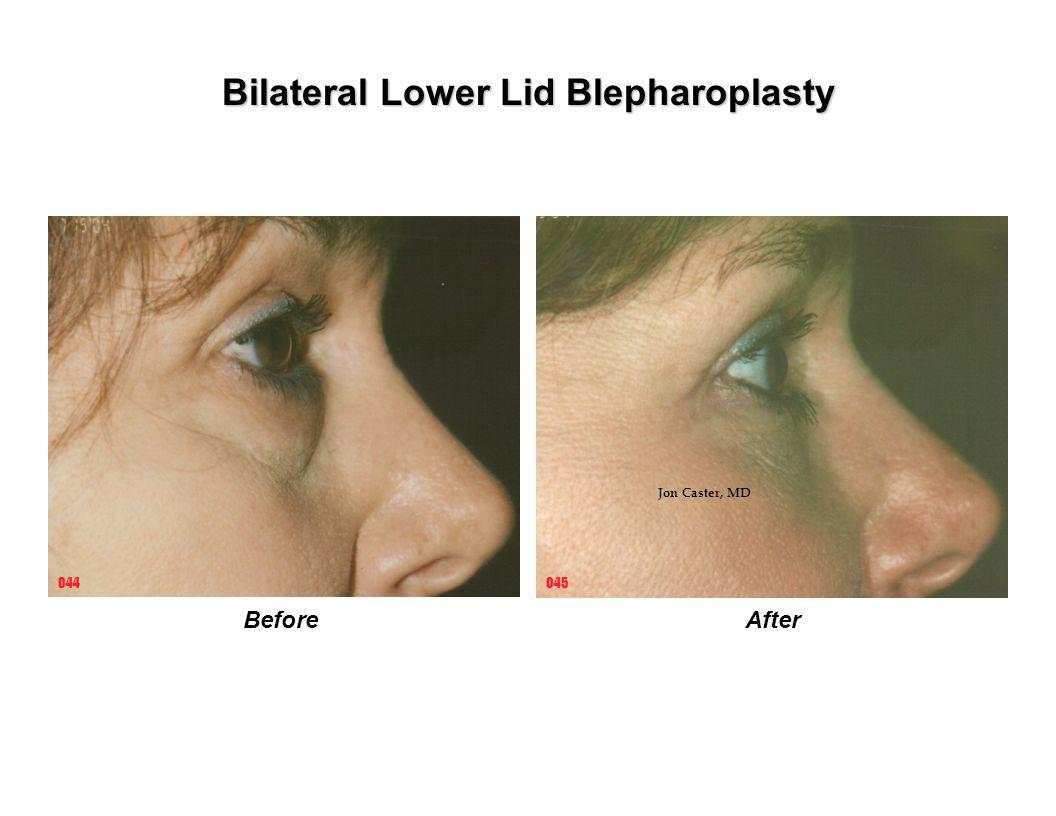 BeforeAfter 045044 Bilateral Lower Lid Blepharoplasty Jon Caster, MD
