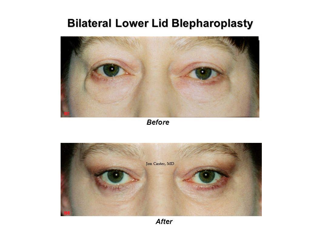 Bilateral Lower Lid Blepharoplasty Before After 197 198 Jon Caster, MD