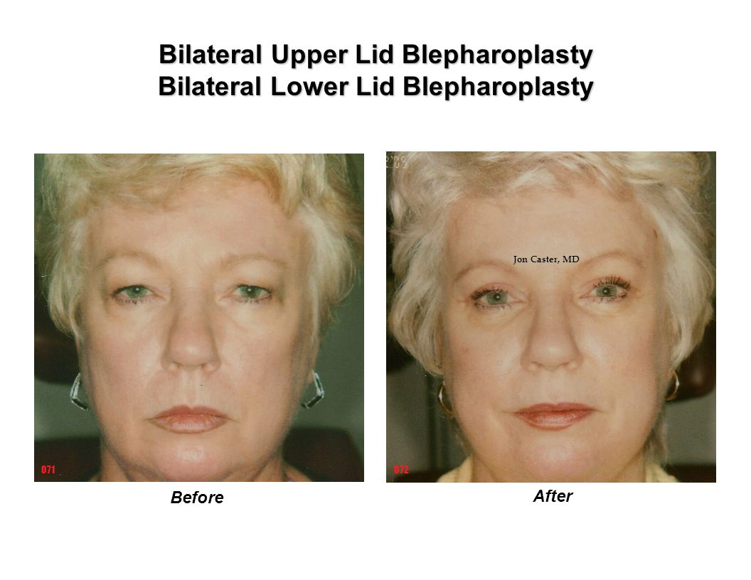 Bilateral Upper Lid Blepharoplasty Bilateral Lower Lid Blepharoplasty Before After 072071 Jon Caster, MD