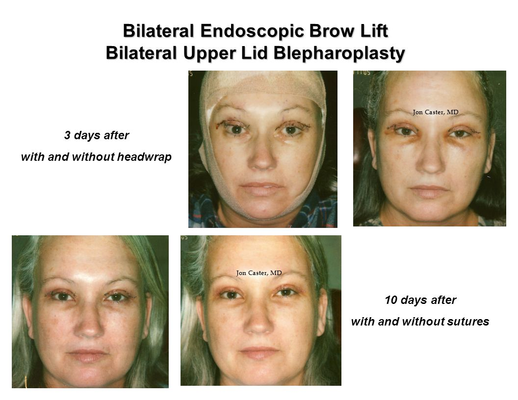 Bilateral Endoscopic Brow Lift Bilateral Upper Lid Blepharoplasty 3 days after with and without headwrap 10 days after with and without sutures Jon Caster, MD