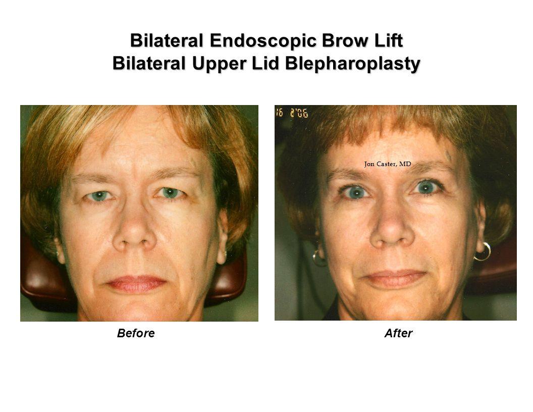 Bilateral Endoscopic Brow Lift Bilateral Upper Lid Blepharoplasty BeforeAfter Jon Caster, MD