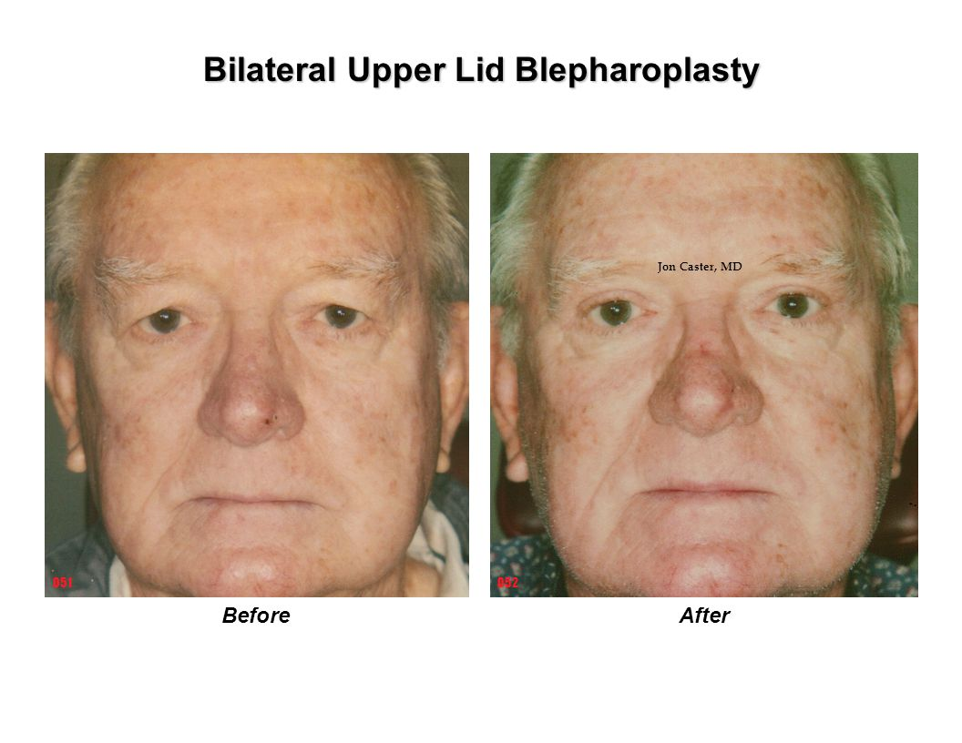 BeforeAfter Bilateral Upper Lid Blepharoplasty 052051 Jon Caster, MD