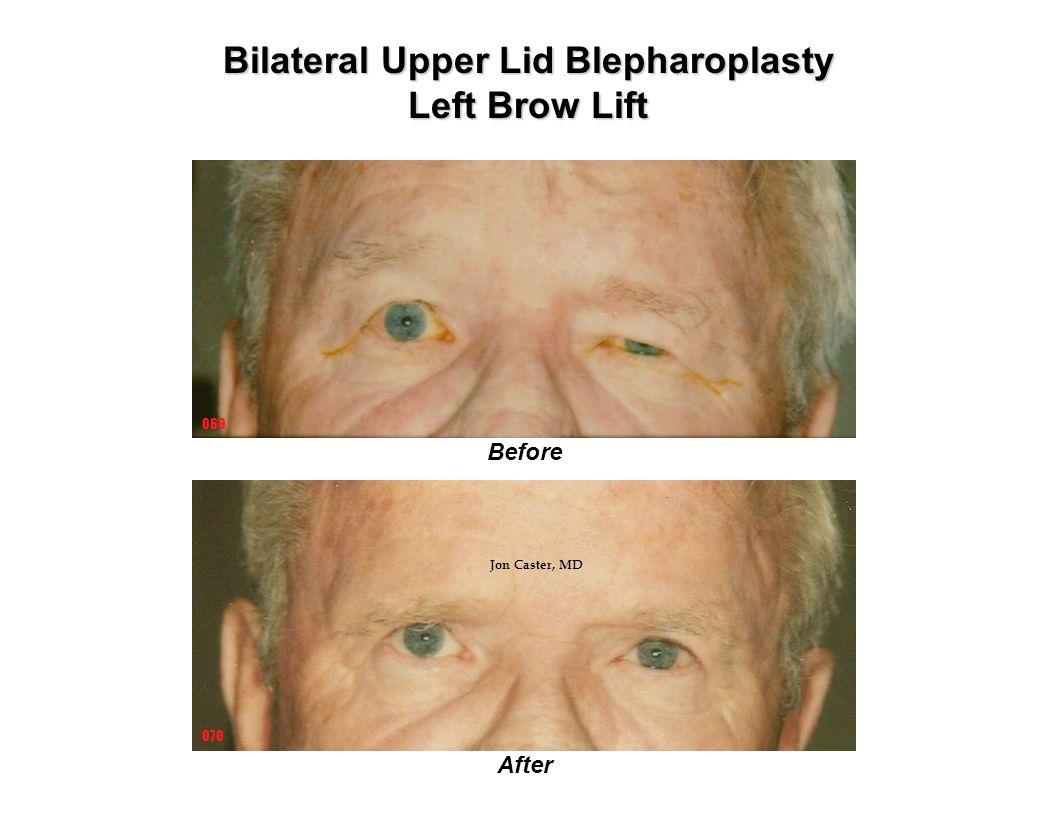 Before After 069 070 Bilateral Upper Lid Blepharoplasty Left Brow Lift Jon Caster, MD