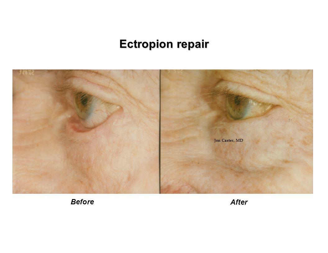Ectropion repair BeforeAfter Jon Caster, MD