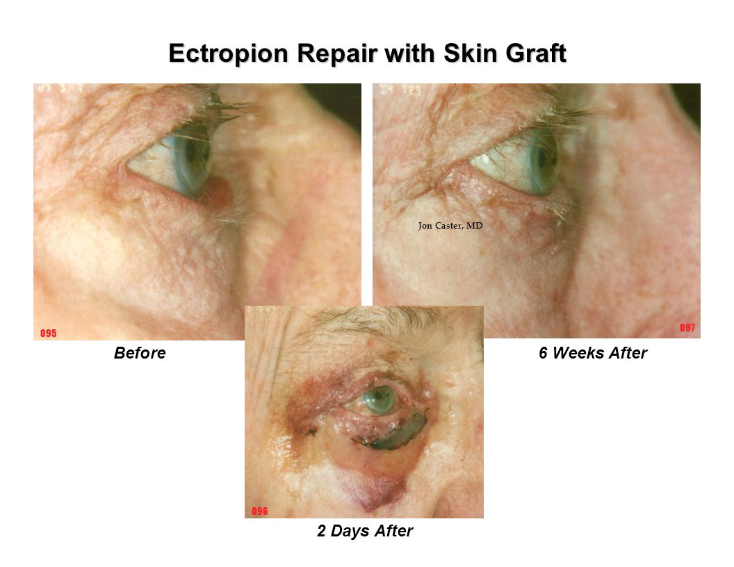 Ectropion Repair with Skin Graft Before6 Weeks After 2 Days After 096 097 095 Jon Caster, MD