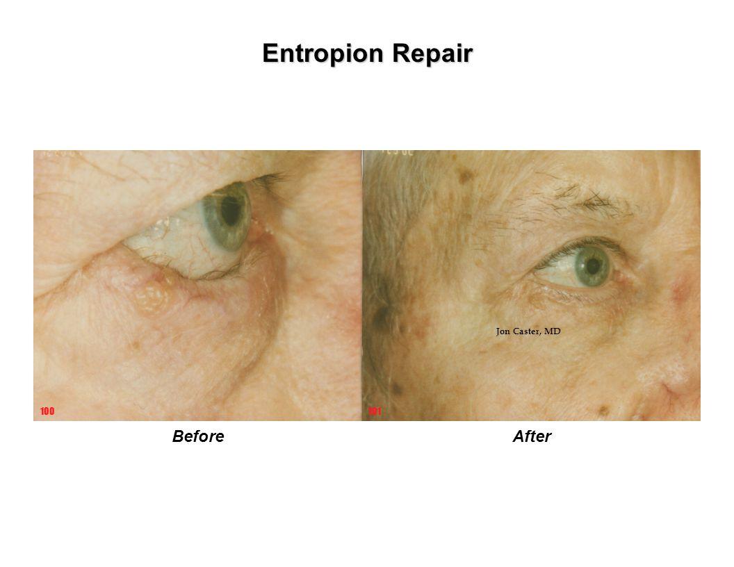 Entropion Repair BeforeAfter 101100 Jon Caster, MD