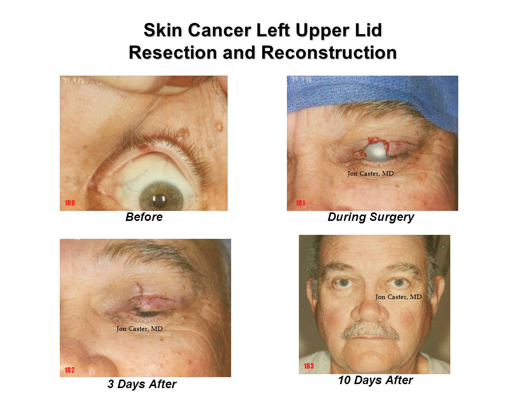 Skin Cancer Left Upper Lid Resection and Reconstruction 10 Days After Before 181 182 3 Days After 180 183 During Surgery Jon Caster, MD