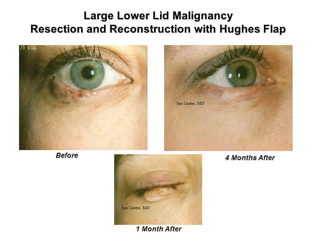 1 Month After Large Lower Lid Malignancy Resection and Reconstruction with Hughes Flap Before 4 Months After Jon Caster, MD