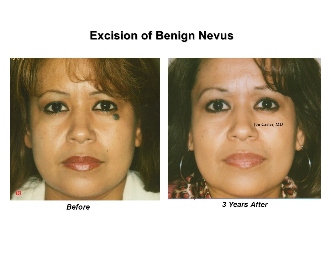 Excision of Benign Nevus 137 Before 3 Years After Jon Caster, MD