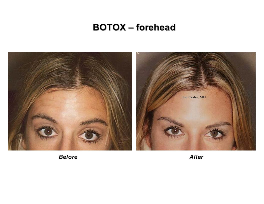 BOTOX – forehead BeforeAfter Jon Caster, MD