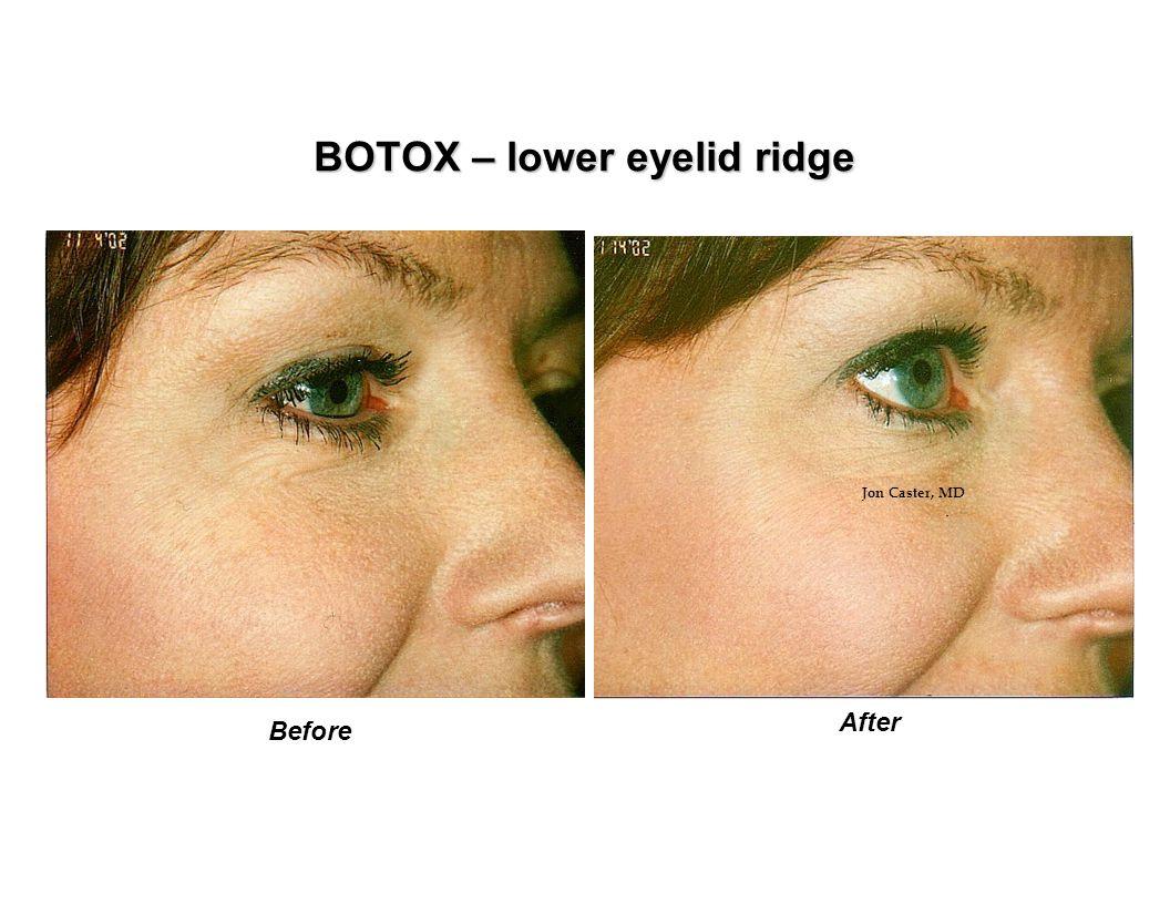 BOTOX – lower eyelid ridge Before After Jon Caster, MD