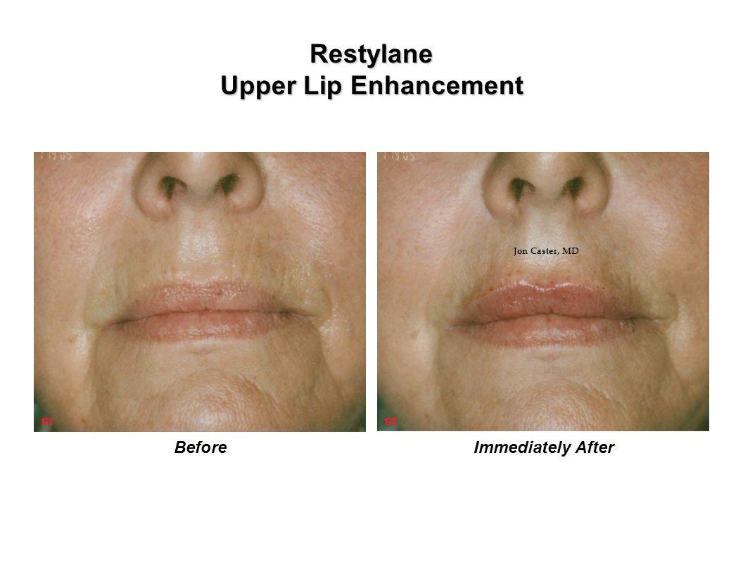 Restylane Upper Lip Enhancement Immediately AfterBefore 171172 Jon Caster, MD