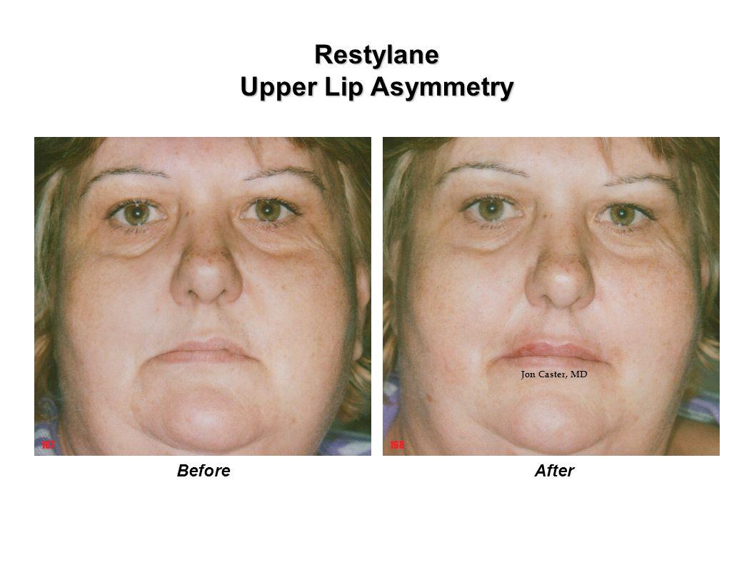 Restylane Upper Lip Asymmetry AfterBefore 167168 Jon Caster, MD