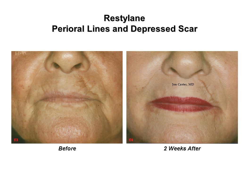 Restylane Perioral Lines and Depressed Scar 2 Weeks AfterBefore 173174 Jon Caster, MD