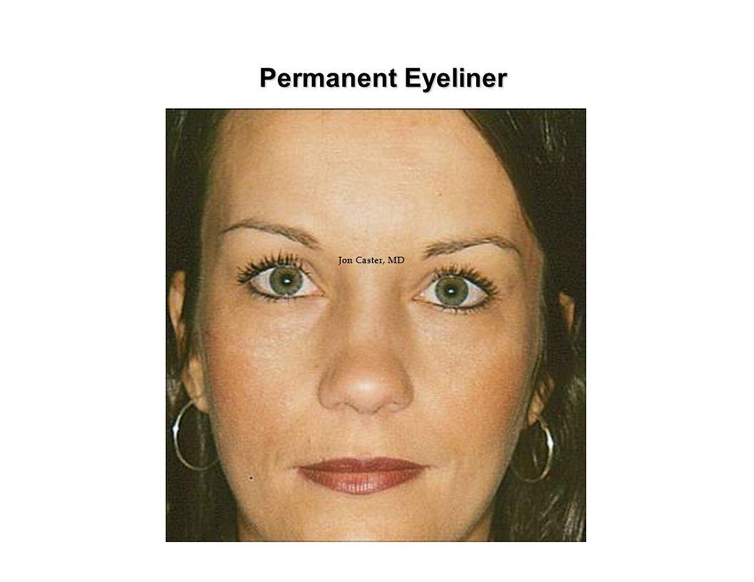 Permanent Eyeliner Jon Caster, MD