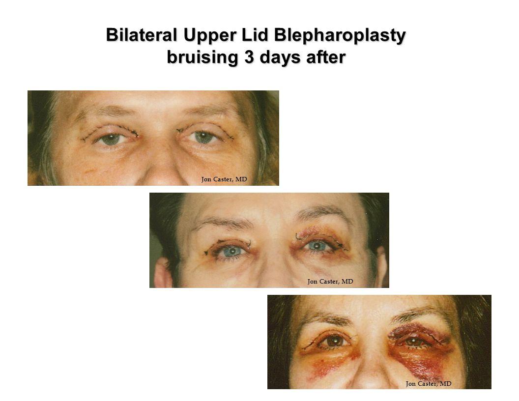 Bilateral Upper Lid Blepharoplasty bruising 3 days after Jon Caster, MD