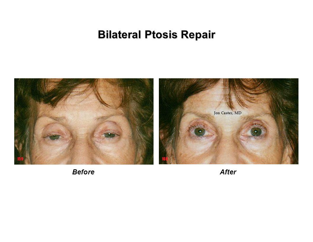 BeforeAfter 160159 Bilateral Ptosis Repair Jon Caster, MD