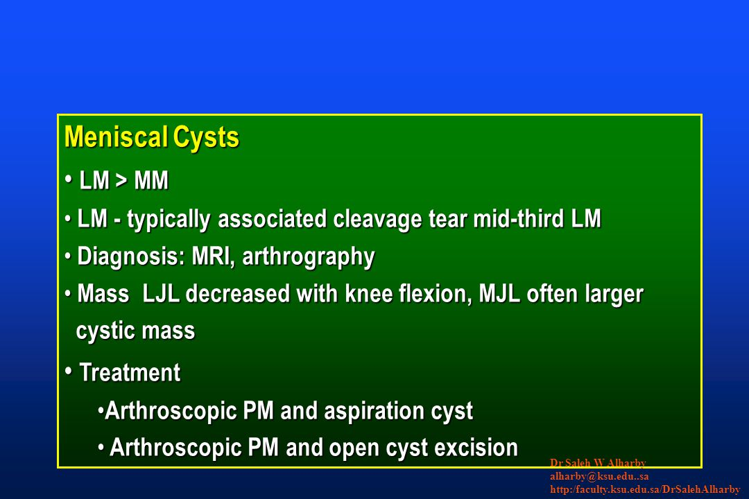 Meniscal Cysts LM > MM LM > MM LM - typically associated cleavage tear mid-third LM LM - typically associated cleavage tear mid-third LM Diagnosis: MRI, arthrography Diagnosis: MRI, arthrography Mass LJL decreased with knee flexion, MJL often larger Mass LJL decreased with knee flexion, MJL often larger cystic mass cystic mass Treatment Treatment Arthroscopic PM and aspiration cyst Arthroscopic PM and aspiration cyst Arthroscopic PM and open cyst excision Arthroscopic PM and open cyst excision Dr Saleh W Alharby alharby@ksu.edu..sa http:/faculty.ksu.edu.sa/DrSalehAlharby