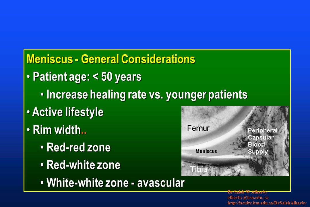 Meniscus - General Considerations Patient age: < 50 years Patient age: < 50 years Increase healing rate vs.