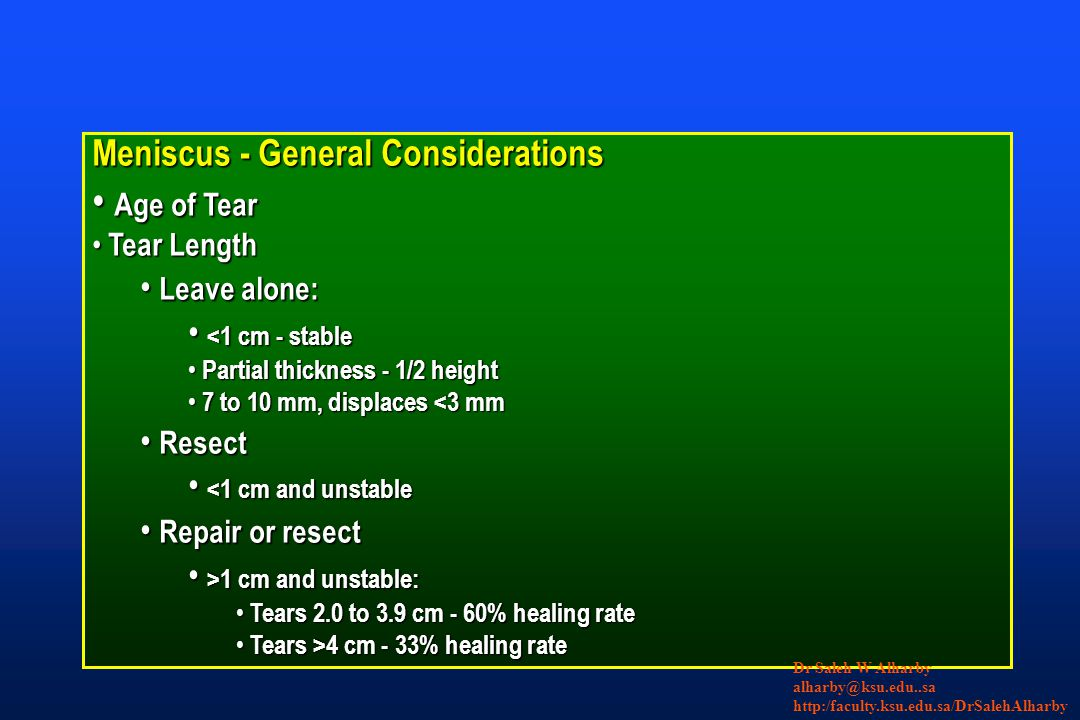 Meniscus - General Considerations Age of Tear Age of Tear Tear Length Tear Length Leave alone: Leave alone: <1 cm - stable <1 cm - stable Partial thic