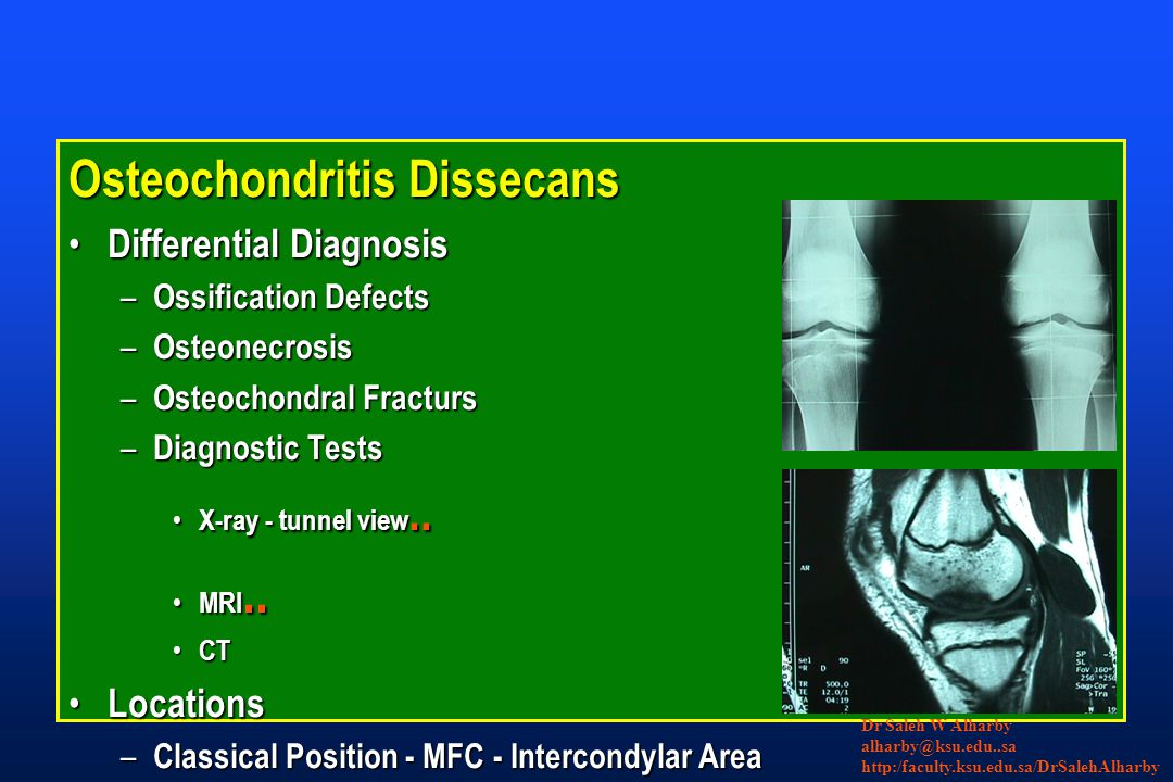 Osteochondritis Dissecans Differential Diagnosis Differential Diagnosis – Ossification Defects – Osteonecrosis – Osteochondral Fracturs – Diagnostic Tests X-ray - tunnel view..