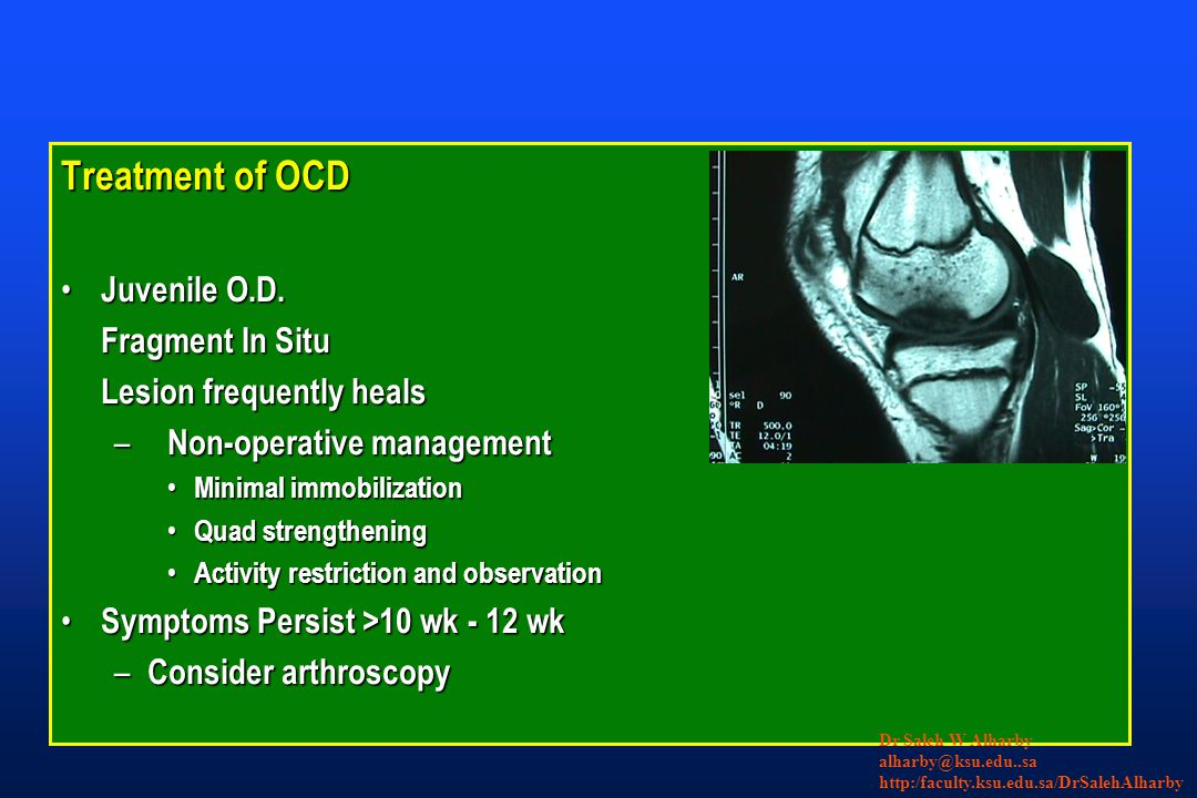 Treatment of OCD Juvenile O.D. Juvenile O.D. Fragment In Situ Lesion frequently heals – Non-operative management Minimal immobilization Minimal immobi