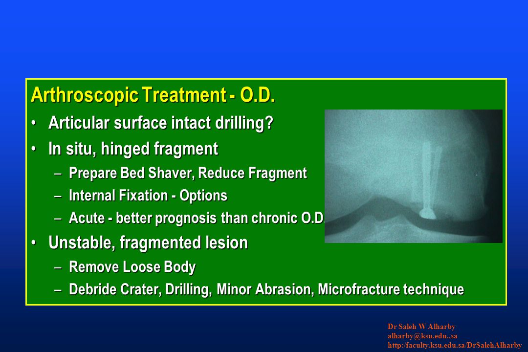 Arthroscopic Treatment - O.D.Articular surface intact drilling.