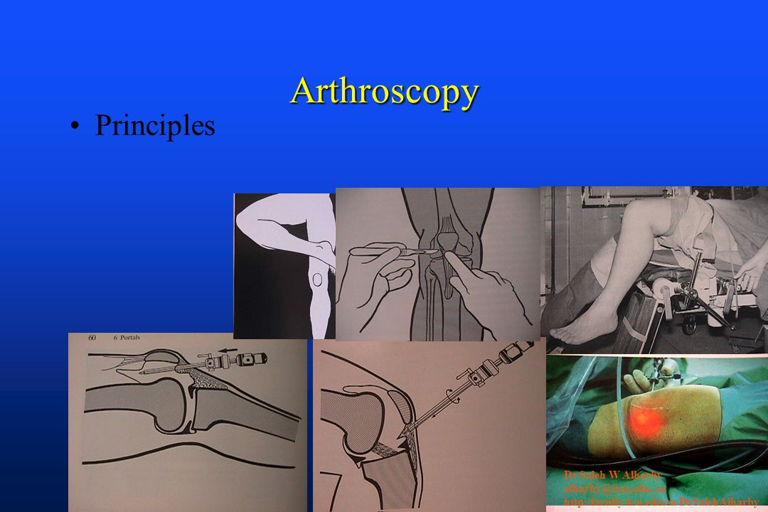 Arthroscopy Principles Dr Saleh W Alharby alharby@ksu.edu..sa http:/faculty.ksu.edu.sa/DrSalehAlharby