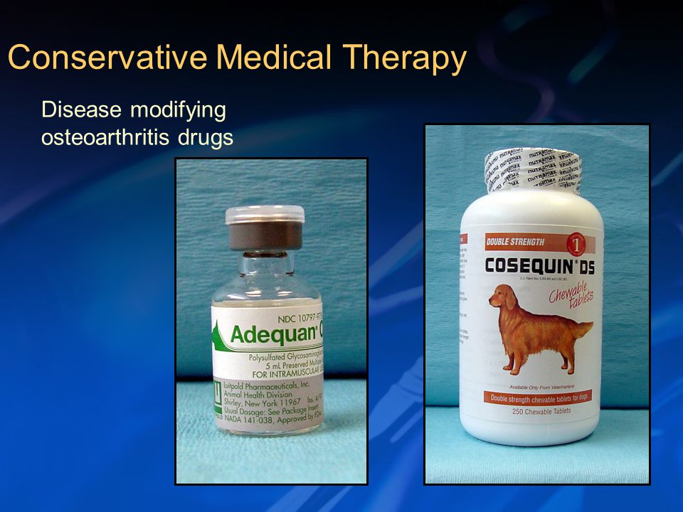 Disease modifying osteoarthritis drugs Conservative Medical Therapy