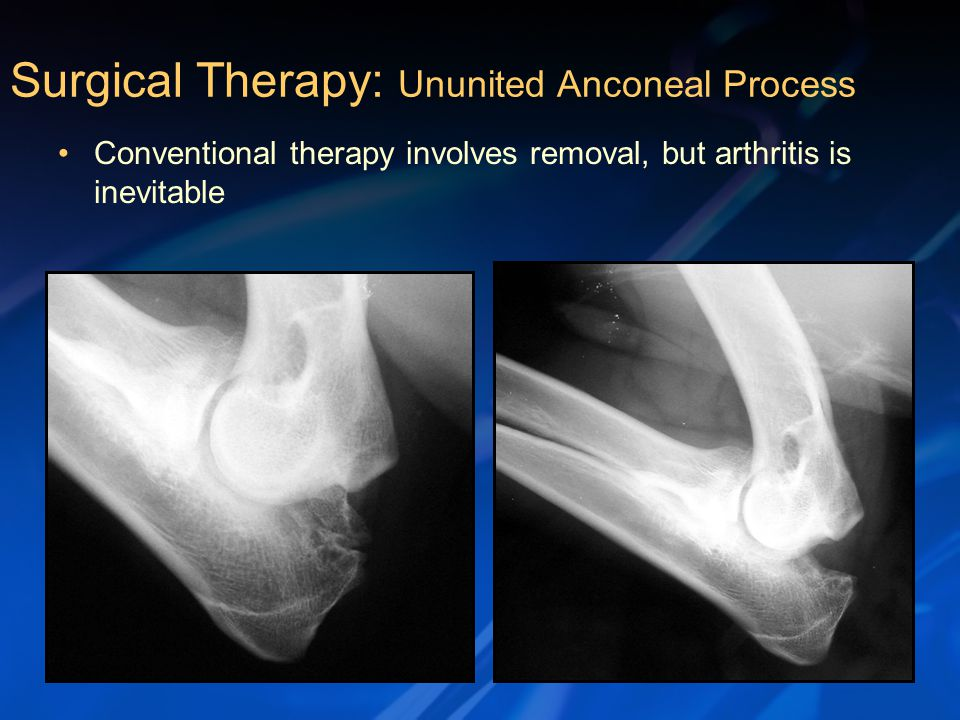 Conventional therapy involves removal, but arthritis is inevitable Surgical Therapy: Ununited Anconeal Process