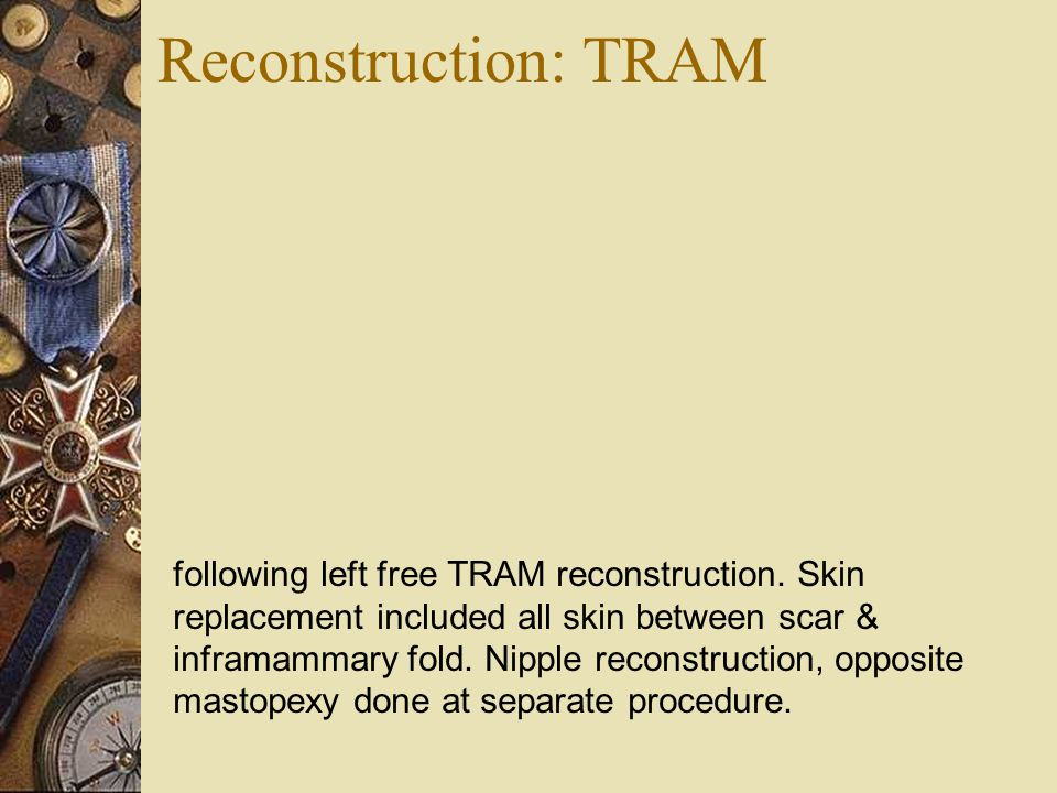 Reconstruction: TRAM following left free TRAM reconstruction. Skin replacement included all skin between scar & inframammary fold. Nipple reconstructi