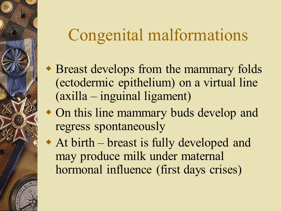 Congenital malformations  Breast develops from the mammary folds (ectodermic epithelium) on a virtual line (axilla – inguinal ligament)  On this lin