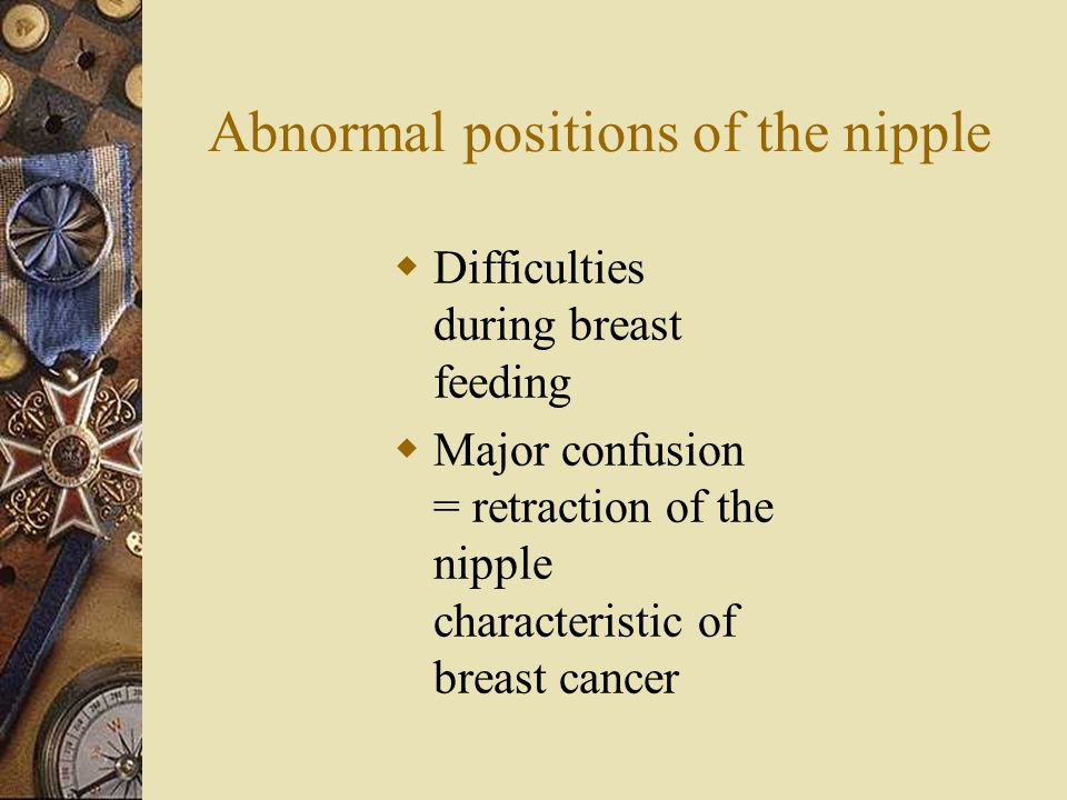 Abnormal positions of the nipple  Difficulties during breast feeding  Major confusion = retraction of the nipple characteristic of breast cancer