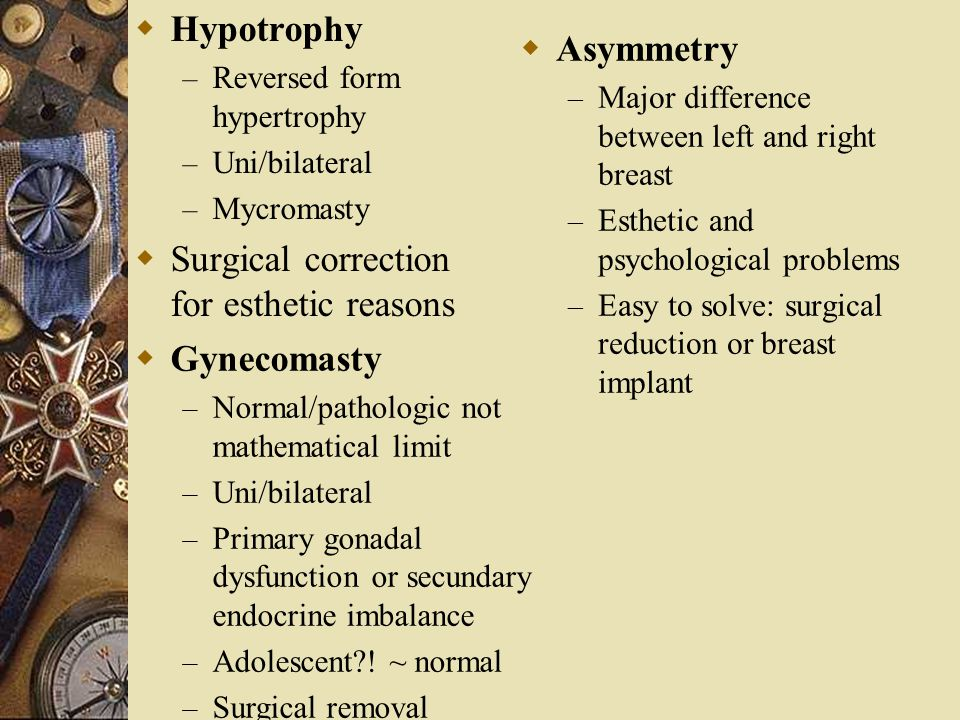  Hypotrophy – Reversed form hypertrophy – Uni/bilateral – Mycromasty  Surgical correction for esthetic reasons  Asymmetry – Major difference betwee