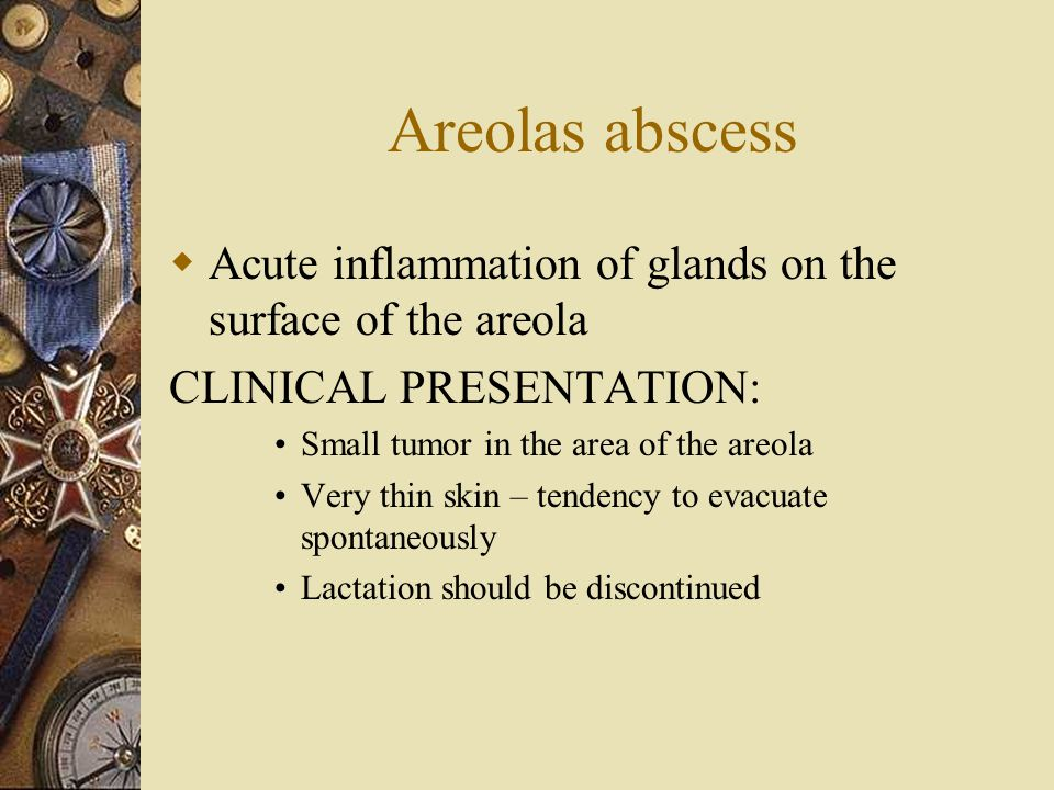 Areolas abscess  Acute inflammation of glands on the surface of the areola CLINICAL PRESENTATION: Small tumor in the area of the areola Very thin ski