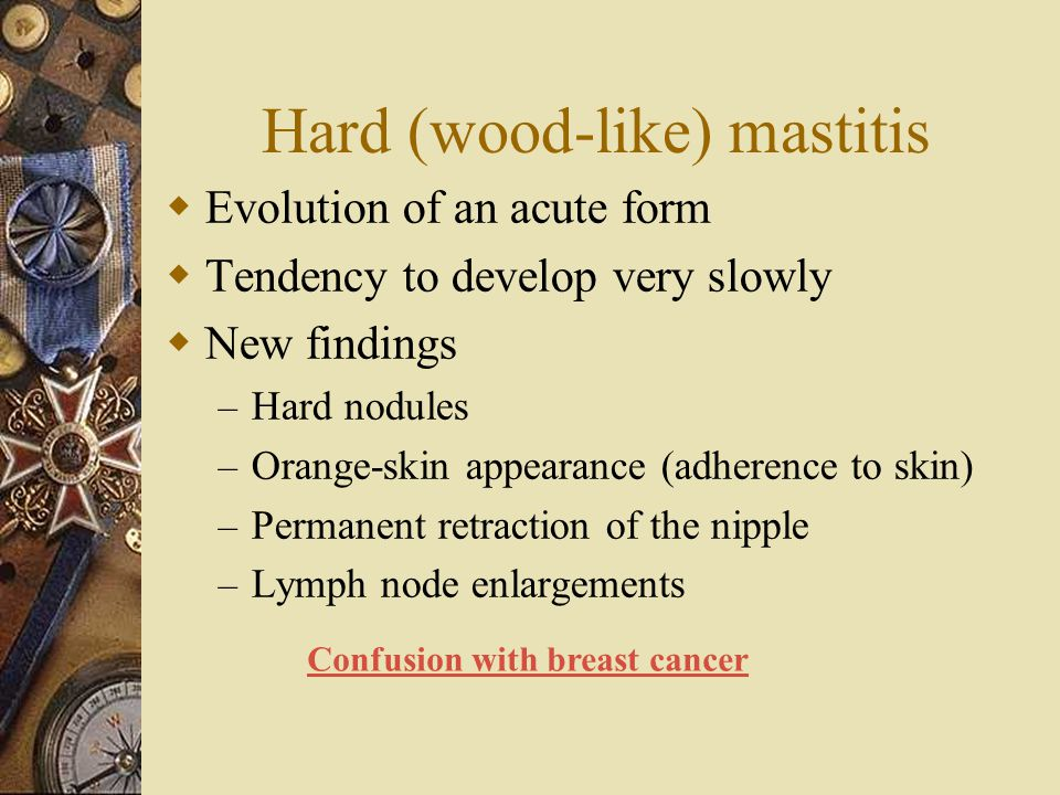 Hard (wood-like) mastitis  Evolution of an acute form  Tendency to develop very slowly  New findings – Hard nodules – Orange-skin appearance (adher