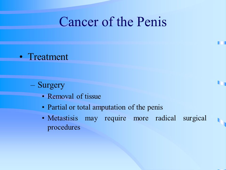 Cancer of the Penis Treatment –Surgery Removal of tissue Partial or total amputation of the penis Metastisis may require more radical surgical procedu