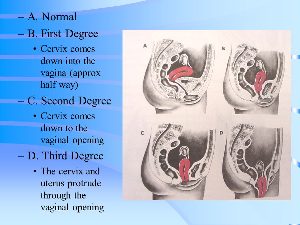 –A. Normal –B. First Degree Cervix comes down into the vagina (approx half way) –C. Second Degree Cervix comes down to the vaginal opening –D. Third D