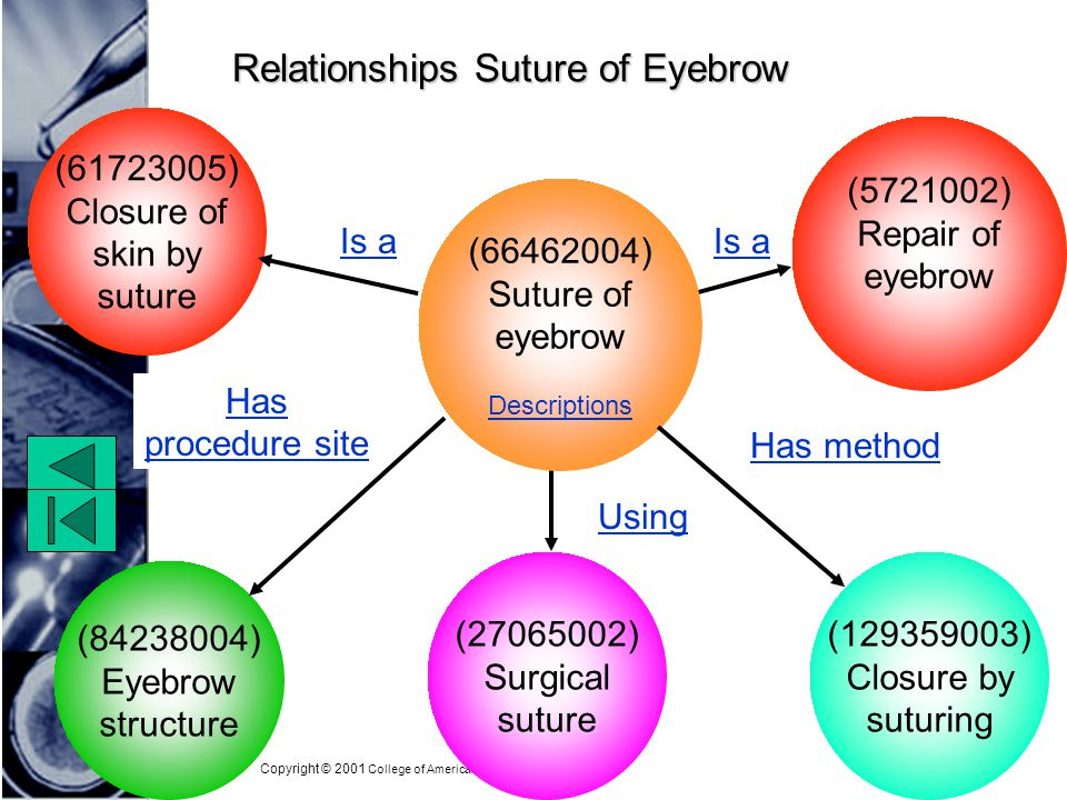 Copyright © 2001 College of American Pathologists Relationships Suture of Eyebrow (61723005) Closure of skin by suture (129359003) Closure by suturing (84238004) Eyebrow structure (66462004) Suture of eyebrow Descriptions (5721002) Repair of eyebrow Is a Has procedure site Has method (27065002) Surgical suture Using