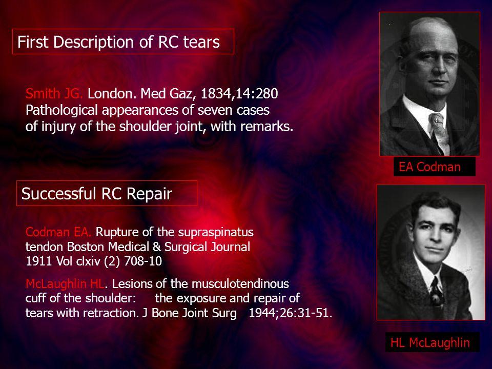 Successful RC Repair Codman EA. Rupture of the supraspinatus tendon Boston Medical & Surgical Journal 1911 Vol clxiv (2) 708-10 McLaughlin HL. Lesions