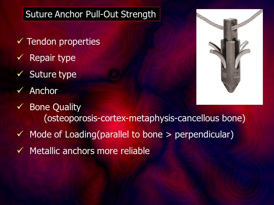 Suture Anchor Pull-Out Strength Tendon properties Repair type Suture type Anchor Bone Quality (osteoporosis-cortex-metaphysis-cancellous bone) Mode of Loading(parallel to bone > perpendicular) Metallic anchors more reliable