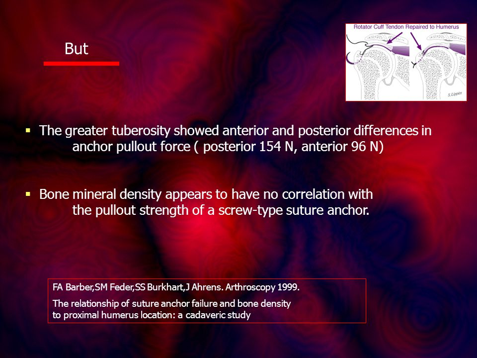 But  The greater tuberosity showed anterior and posterior differences in anchor pullout force ( posterior 154 N, anterior 96 N)  Bone mineral density appears to have no correlation with the pullout strength of a screw-type suture anchor.