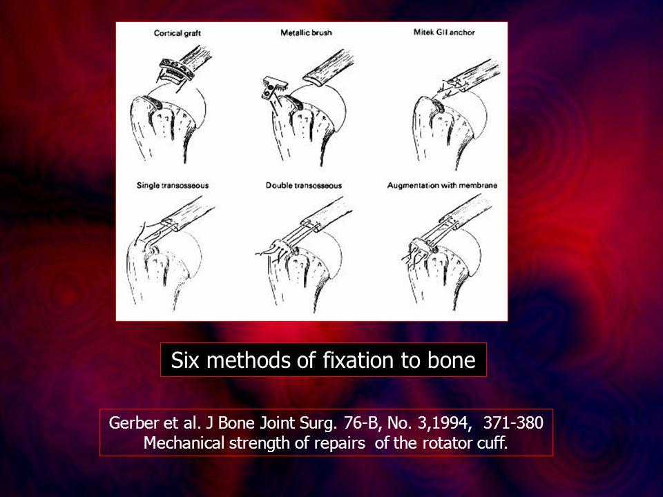 Six methods of fixation to bone Gerber et al. J Bone Joint Surg. 76-B, No. 3,1994, 371-380 Mechanical strength of repairs of the rotator cuff.