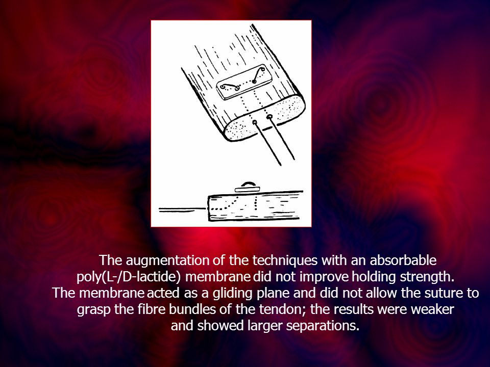 The augmentation of the techniques with an absorbable poly(L-/D-lactide) membrane did not improve holding strength.